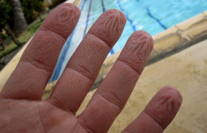 buruşuk parmaklar