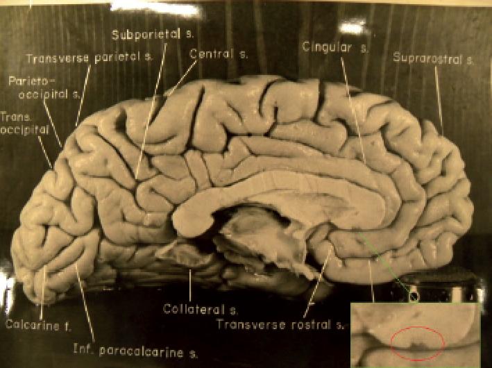 Aynştayn beyin