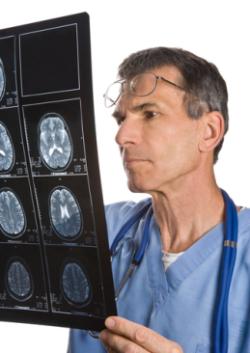 beyin tümör
