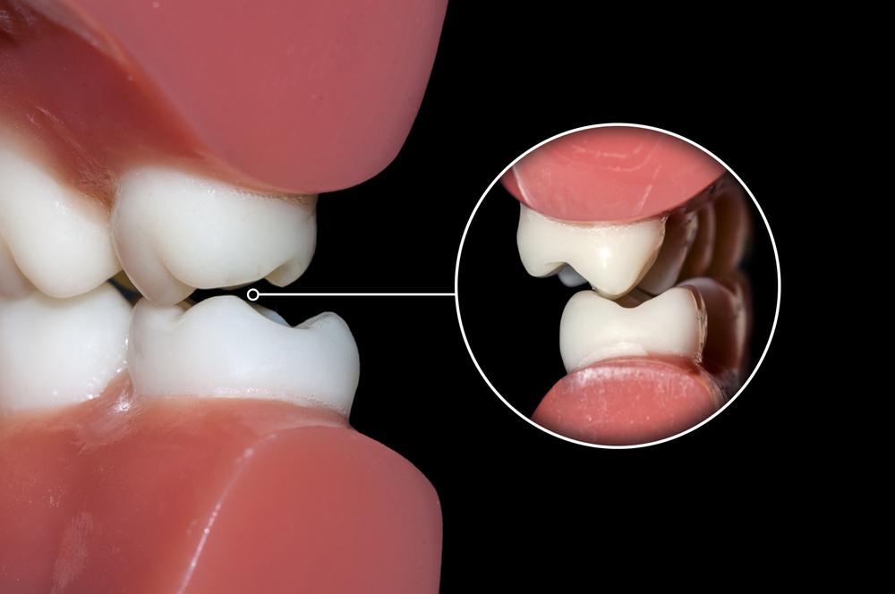 Diş Gıcırdatma ile ilgili görsel sonucu